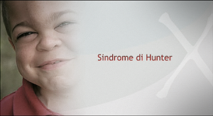 sindrome Hunter
